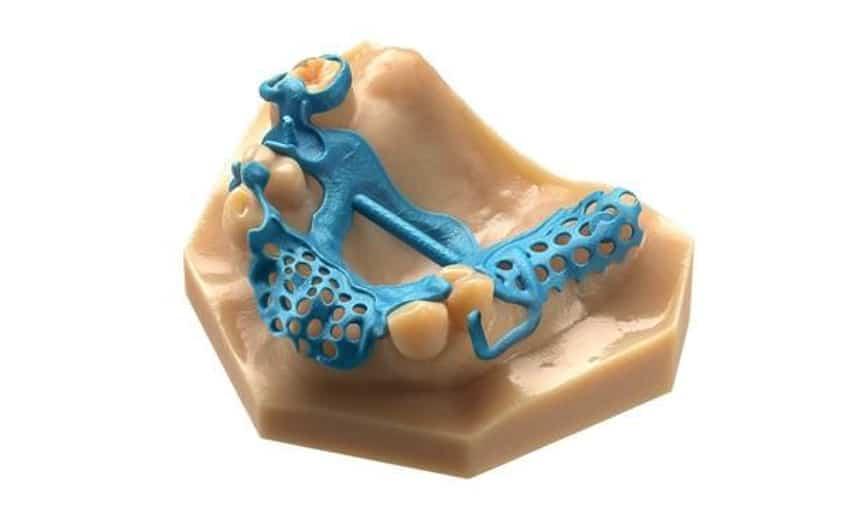 3D Braces