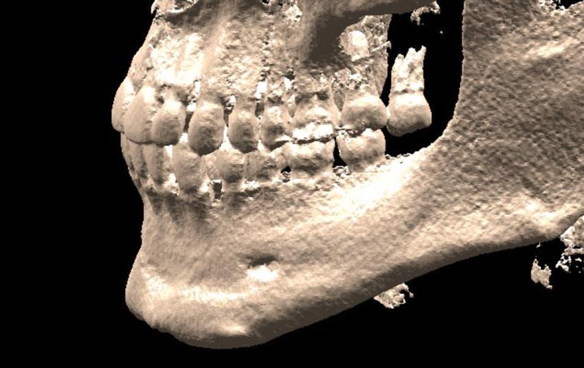 3D DICOM Example
