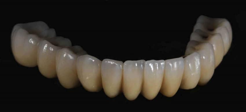 3D Milling 3D Dentistry